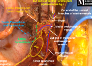 Muallem Technique in Nerve-Sparing Radical Hysterectomy